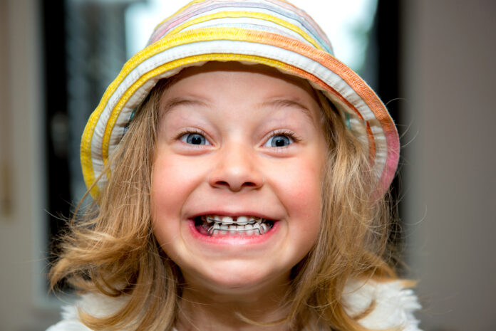 Orthodontic Headgear